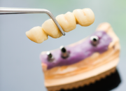Healthy Body Dental Crowns and Bridges