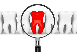 Find and Eliminate Tooth Pain Clearwater FL