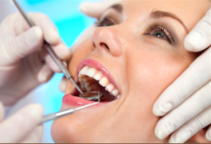 Inlays and Onlays Dentist Clearwater Florida