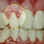 periodontal1